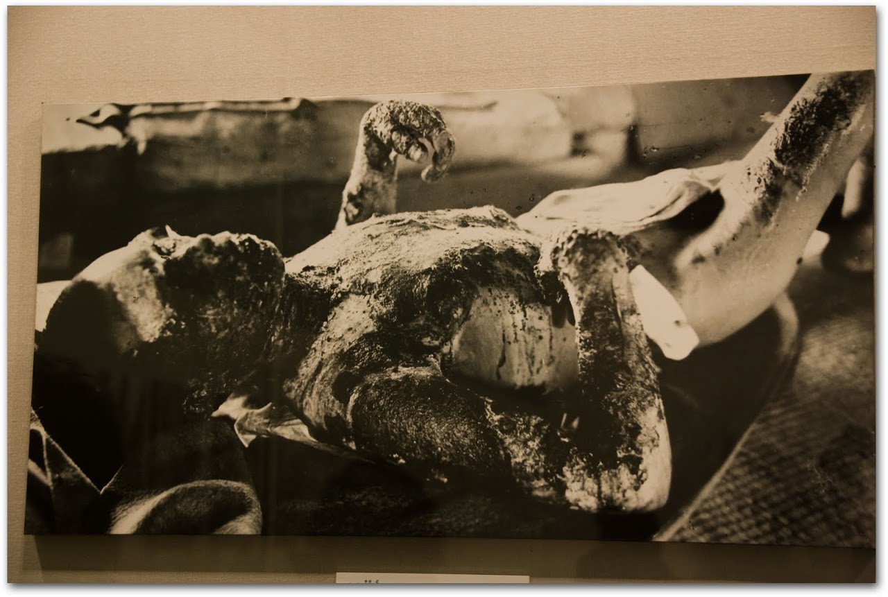 Picture of victim of atom bomb